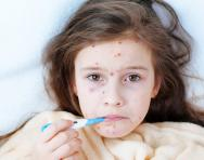 The primary school parents' guide to chickenpox