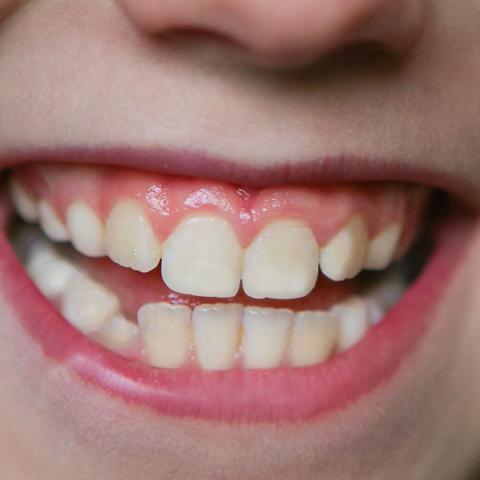 Teeth and dental care Homework Gnome